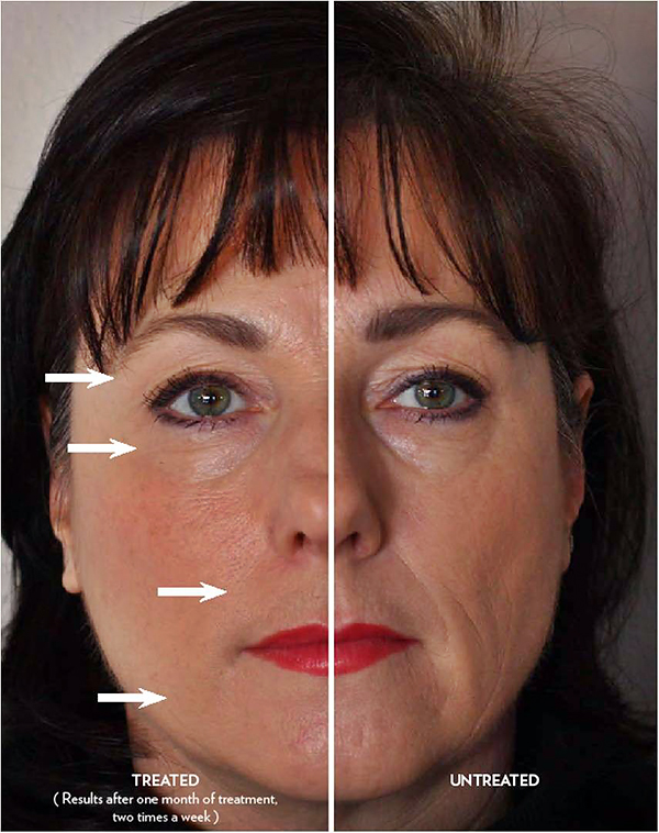 Diminish wrinkles with Galvanic Spa, Women